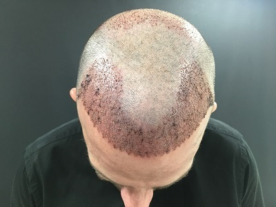 hair transplant in Turkey : Spain Istanbul - Clinic Advisor