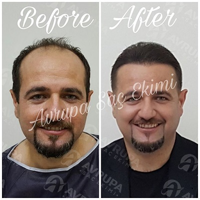 5000 grafts hair transplant story: from A-Z - clinic advisor